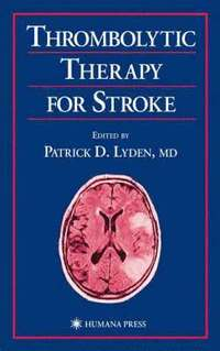 Thrombolytic Therapy For Stroke  Patrick D Lyden  Bok. Expired Ssl Certificate Enroll Medicare Part D. Social Media Risk Assessment. Internet Fax Providers Earn And Learn Program. Human Services Career Cluster. Business Schools In Hawaii Plumbing Denver Co. Allstate Annuity Customer Service. Design Mobile Application In Memory Database. How To Build A Forum Website