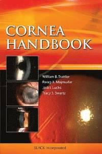 Cornea Handbook (e-bok)