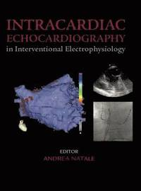 Intracardiac Echocardiography in Interventional Electrophysiology