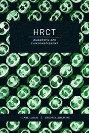 HRCT – diagnostik och sjukdomsöversikt