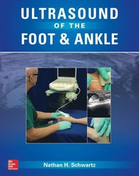 Ultrasound of the Foot and Ankle (e-bok)