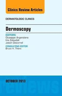 Dermoscopy, an Issue of Dermatologic Clinics (inbunden)