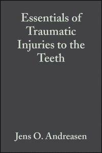Essentials of Traumatic Injuries to the Teeth (e-bok)