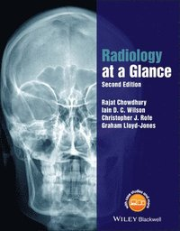 Radiology at a Glance (häftad)