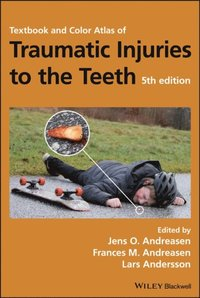 Textbook and Color Atlas of Traumatic Injuries to the Teeth (e-bok)
