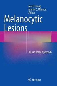 Melanocytic Lesions (inbunden)