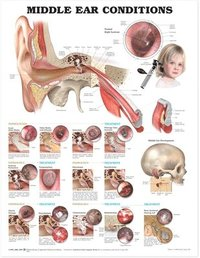Middle Ear Conditions Anatomical Chart (inbunden)
