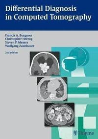 Differential Diagnosis in Computed Tomography (inbunden)