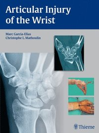 Articular Injury of the Wrist (inbunden)