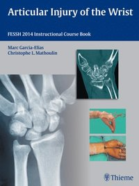 Articular Injury of the Wrist (e-bok)