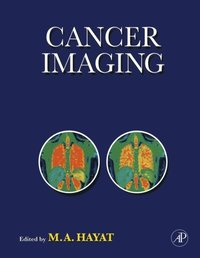 Cancer Imaging