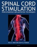 Spinal Cord Stimulation Implantation