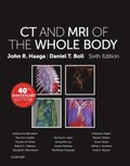 Computed Tomography & Magnetic Resonance Imaging Of The Whole Body E-Book