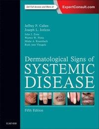 Dermatological Signs of Internal Disease E-Book - Jeffrey P