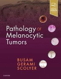 Pathology of Melanocytic Tumors