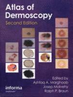 An Atlas of Dermoscopy
