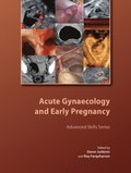 Acute Gynaecology and Early Pregnancy