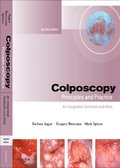 Colposcopy E-Book