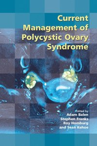 Current Management of Polycystic Ovary Syndrome