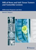 MRI of Bone and Soft Tissue Tumors and Tumorlike Lesions