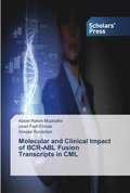 Molecular and Clinical Impact of Bcr-Abl Fusion Transcripts in CML