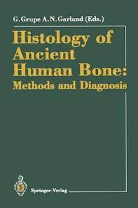 Histology of Ancient Human Bone: Methods and Diagnosis