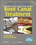 Step by Step: Root Canal Treatment